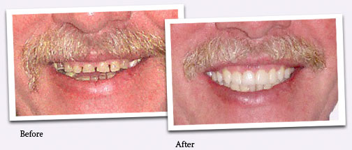 Before and after smile photos.