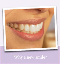 Why a new smile?